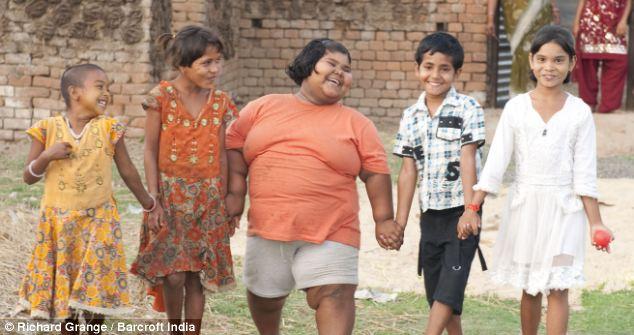 世界上最胖的儿童